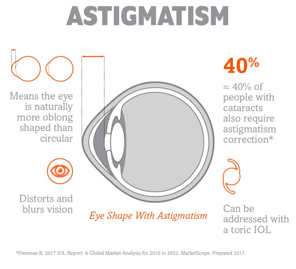 Illustrated diagram explaining astigmatism