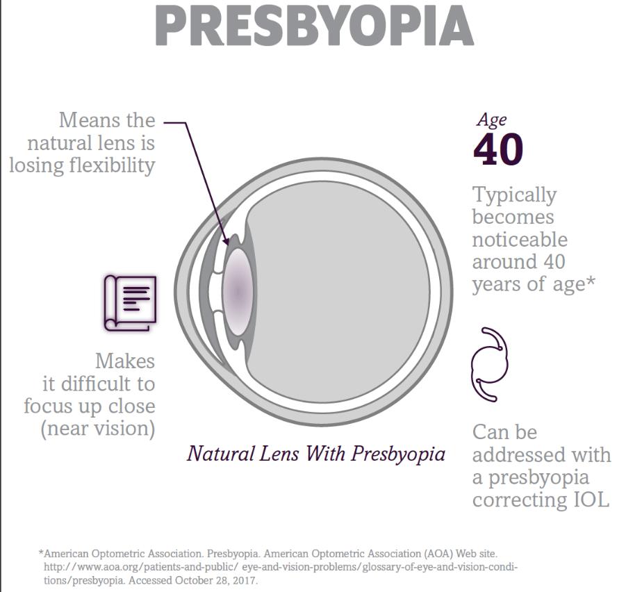 Illustrated diagram explaining presbyopia